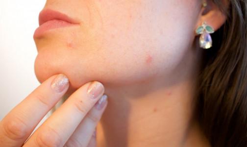 Ковид на лицо: Дерматолог рассказал, как инфекция влияет на кожу