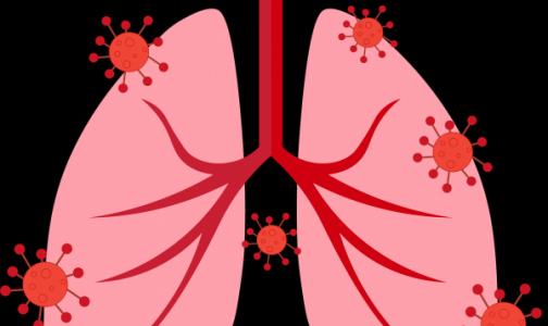 В США женщина умерла после пересадки легких, зараженных коронавирусом