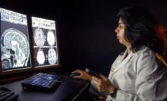 Ученые обнаружили связь между поражениями легких и головного мозга. Это поможет предотвратить инсульты у перенесших ковид