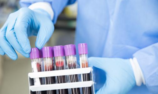 Тест на рак. В НМИЦ онкологии им. Петрова рассказали, могут ли онкомаркеры обнаружить болезнь до появления симптомов