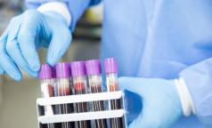 Выпейте воды и успокойтесь: 8 правил подготовки к сдаче анализа крови