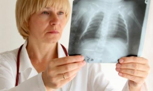 В России снижаются показатели заболеваемости туберкулезом