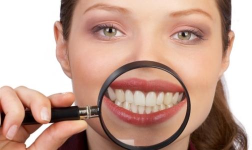 Отбеливайте зубы у профессионалов