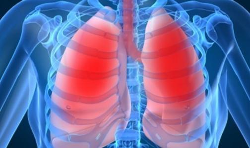 Туберкулез в больнице нашли после родов
