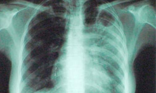 Разработана новая вакцина от туберкулеза