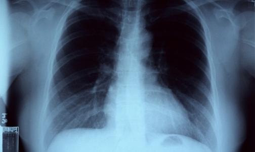 Страдающих туберкулезом хотят изолировать
