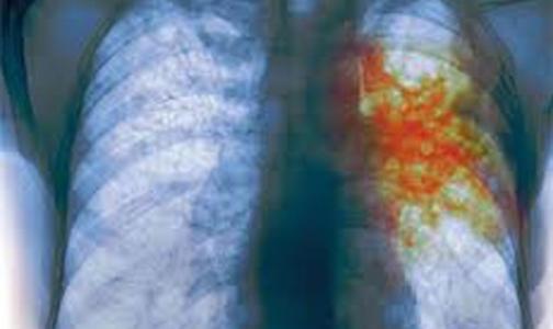 Лечить больных туберкулезом должны все - даже врачи общей практики