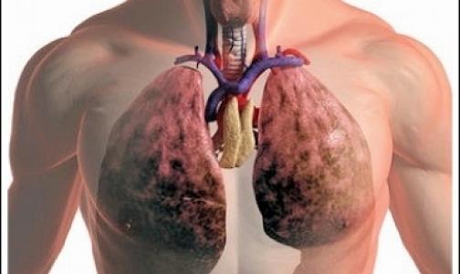 Как сохранить легкие для трансплантации?