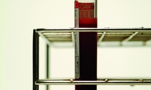 Минздрав обвинили в срыве поставок тест-систем для лечения ВИЧ