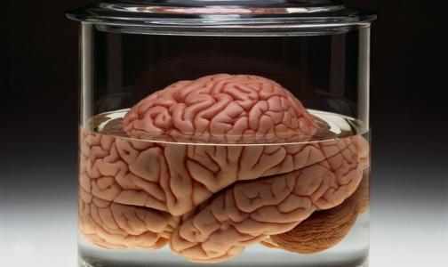 Мозг человека достиг физических пределов развития