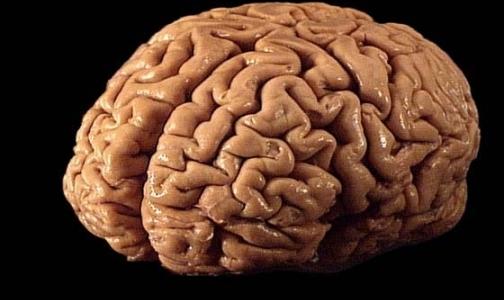 От работы в офисе уменьшается мозг