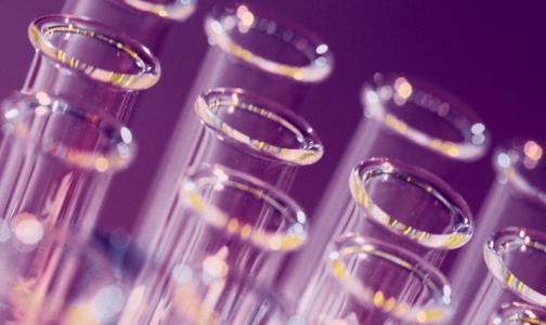ООН предупреждает о возможной вспышке птичьего гриппа