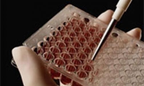 Австралийские ученые нашли причину лейкозов