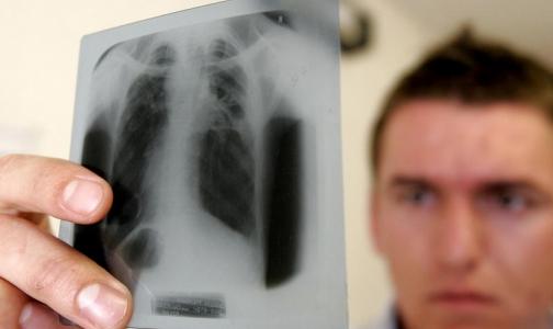 Заболеваемость туберкулезом снизилась