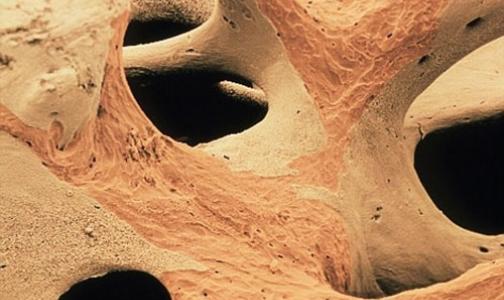 Остеопороз: бесшумная эпидемия