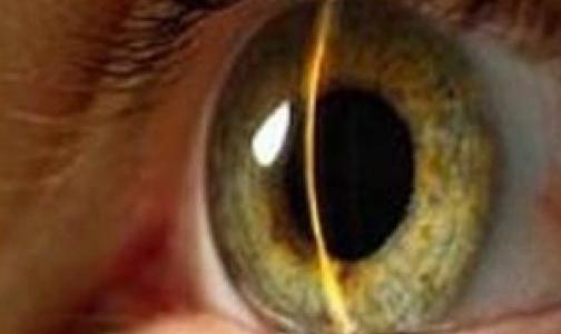 В поликлиниках Петербурга задерживается открытие кабинетов по лечению глаукомы