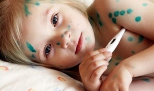 Какими детскими болезнями болеют взрослые петербуржцы
