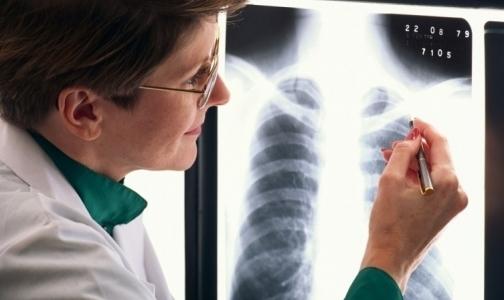 Почему петербургские дети реже хабаровских болеют туберкулезом