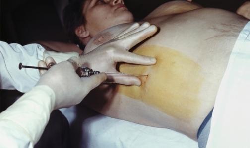 Лечить гепатиты В и С в Петербурге можно бесплатно или за 50 % стоимости курса терапии