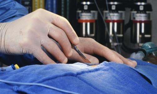 В Петербурге впервые выполнена сложная операция при раке легкого без разрезов