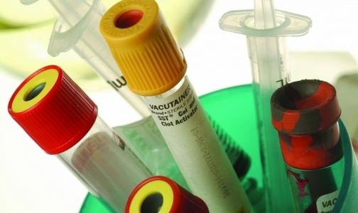 В Петербурге выявляют гепатит Е в среднем раз в году