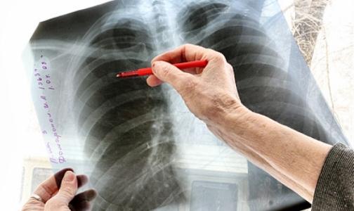 Петербургские врачи назвали мигрантов причиной роста заболеваемости детей туберкулезом
