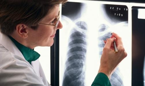 Больного туберкулезом петербуржца отправили на принудительное лечение прямо из зала суда