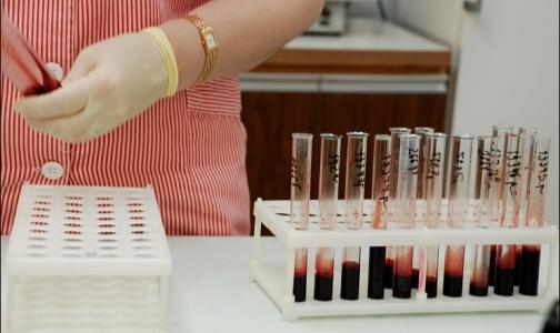Каждый час 8 человек в России заражаются ВИЧ
