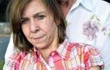 Врачи вернули молодость 16-летней девушке с синдромом «Бенджамина Баттона»: Фоторепортаж