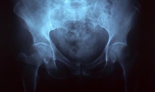 Со следующего года эндопротезирование можно сделать по полису ОМС
