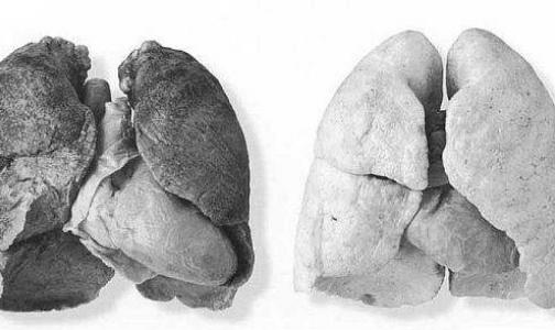 Медики научились диагностировать рак легких по дыханию