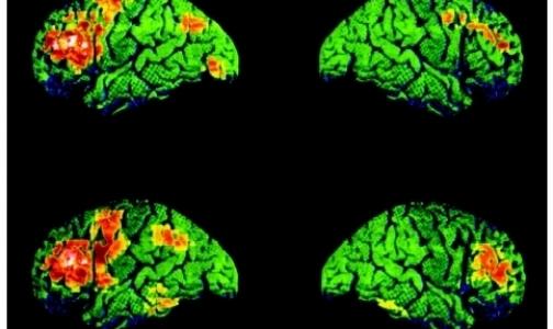 Ученые объяснили мужской ум и женскую интуицию