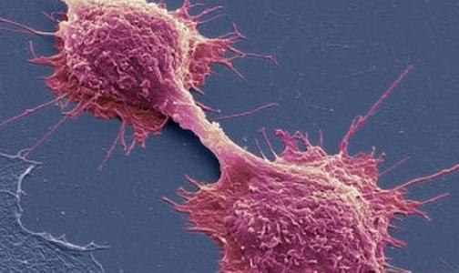 Ученым удалось вызвать самоубийство раковых клеток
