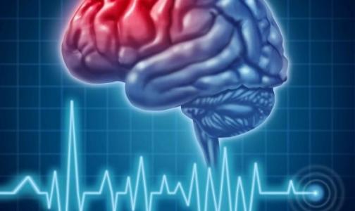 Витамин Е защитит мозг от инсульта