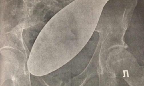 Петербургскому врачу сделали замечание за забытый в животе пациента хирургический инструмент