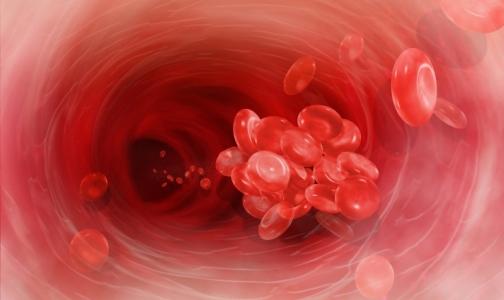 Тромбопрофилактику в России не получают более 90% в ней нуждающихся