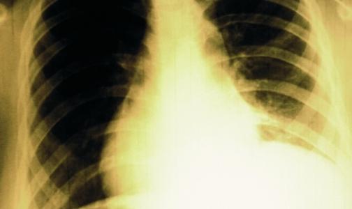 ВОЗ: 9 млн человек заразились туберкулезом за год