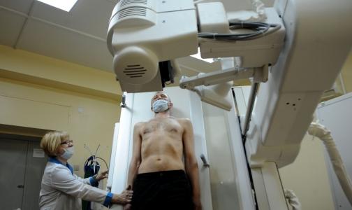 Петербуржцы болеют туберкулезом втрое реже, чем 20 лет назад