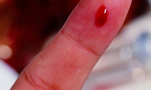 Петербуржцы, страдающие гемофилией, теперь сдают анализы платно