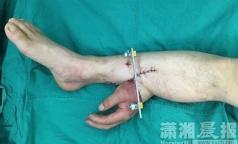 Хирурги спасли пациенту руку, пришив ее к ноге