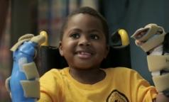 Хирурги впервые пересадили ребенку донорские кисти рук