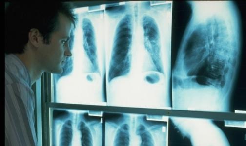 У петербуржцев начали искать рак без записи и очереди