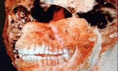 Зубы древних римлян были здоровее, чем у современных людей