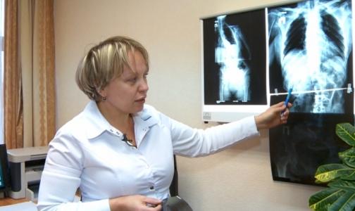 Российские нейрохирурги прооперировали женщину с синдромом Пизанской башни