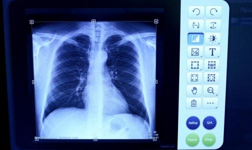 За полгода в Петербурге смертность от болезней органов дыхания выросла почти на 30%