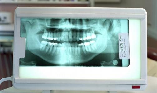 Зубная боль: пульпит или периодонтит?