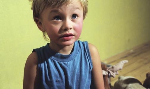 Глава Роспотребнадзора рассказала, надо ли изолировать непривитых от полиомиелита детей