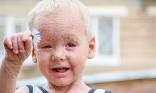 Помогите трехлетнему Диме с ихтиозом почувствовать солнце