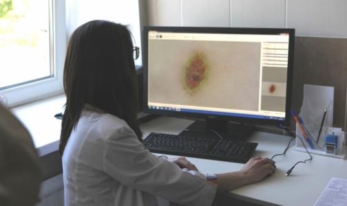 В районном КВД Петербурга будут без биопсии определять рак кожи