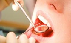 Петербургские стоматологи развеяли мифы о зубных имплантатах и имплантации